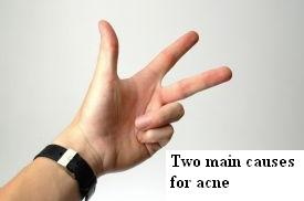 2 mains causes Acne Treatments that work