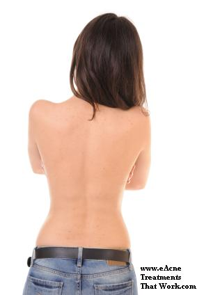 Female with back acne